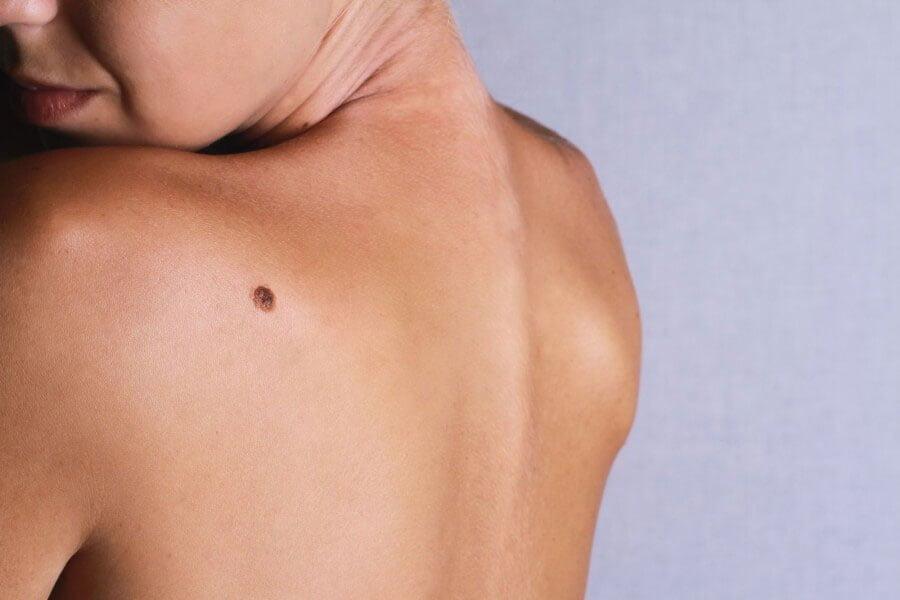 Czerniak - objawy i leczenie