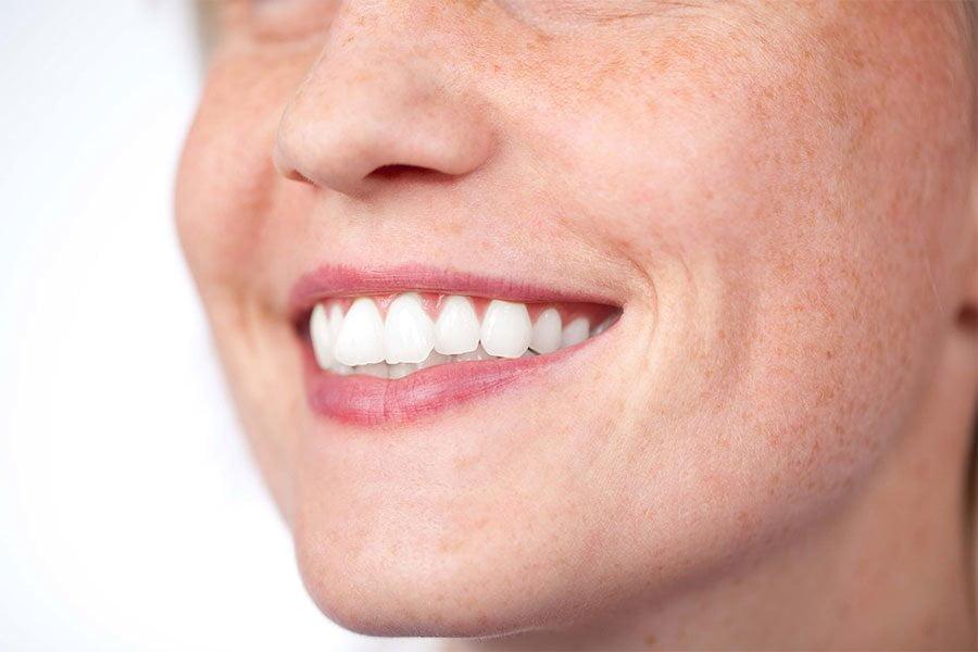 Przebarwienia skóry – jak skutecznie leczyć?