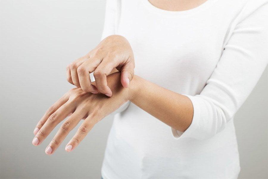 Łuszczyca - przyczyny, objawy, leczenie