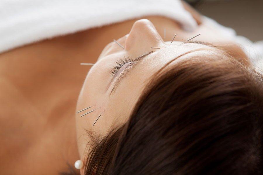 Akupunktura kosmetyczna - sposób na młodą skórę
