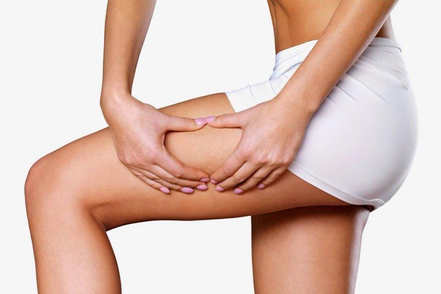 Cellulit wodny - przyczyny, objawy, leczenie