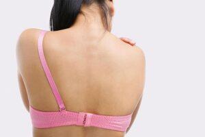 Trądzik na plecach - przyczyny, objawy, leczenie