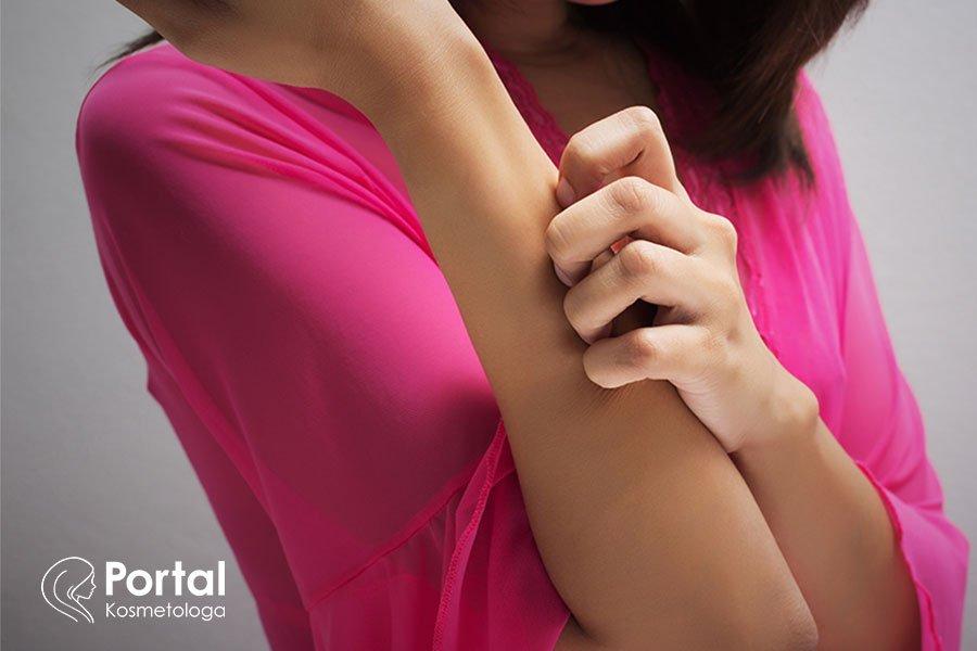 Atopowe zapalenie skóry (AZS) - przyczyny, objawy, leczenie