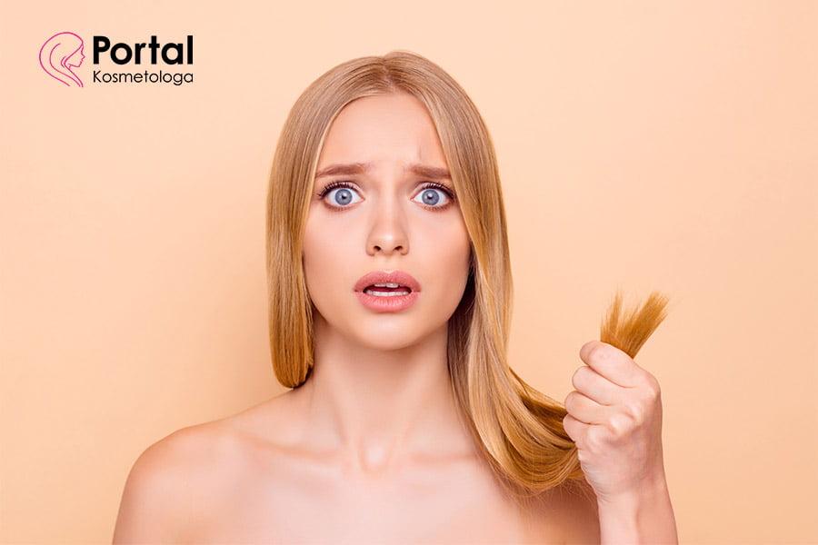 Wypadanie włosów - o czym może świadczyć?
