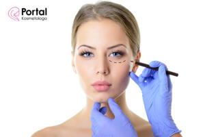 Opadające powieki - przyczyny i leczenie