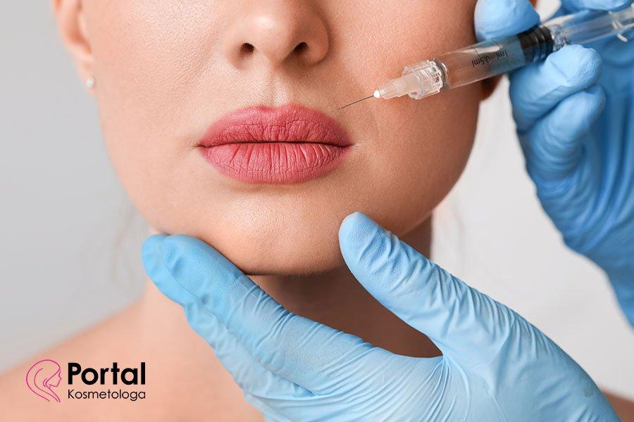 Sposoby na powiększanie ust