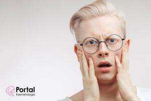 Albinizm - przyczyny choroby