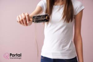 Sposoby na wypadanie włosów
