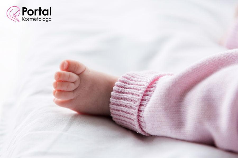 Potówki u niemowlaka - przyczyny, objawy, leczenie