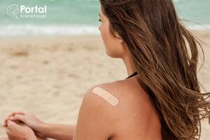 Samouszkodzenia skóry