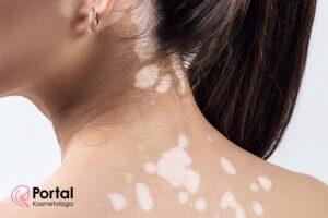 Zmiany skórne w bielactwie nabytym - leczenie