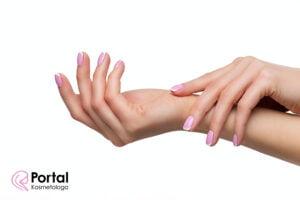 Preparaty do dezynfekcji - wpływ na stan skóry