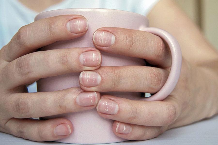 Co oznaczają białe plamki na Twoich paznokciach rąk lub nóg?