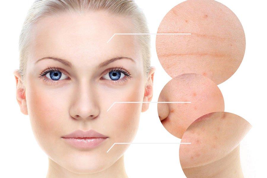 Wszystko na temat trądziku: objawy, przyczyny i najskuteczniejsze metody leczenia